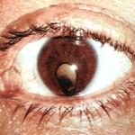 Народные средства от глаукомы и катаракты
